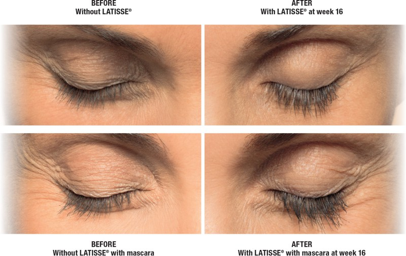Latisse For Longer Eyelashes