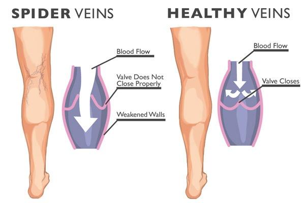 laser treatment for spider veins