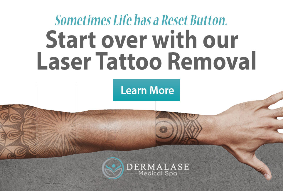 Tattoo Removal, Tattoo Ocala